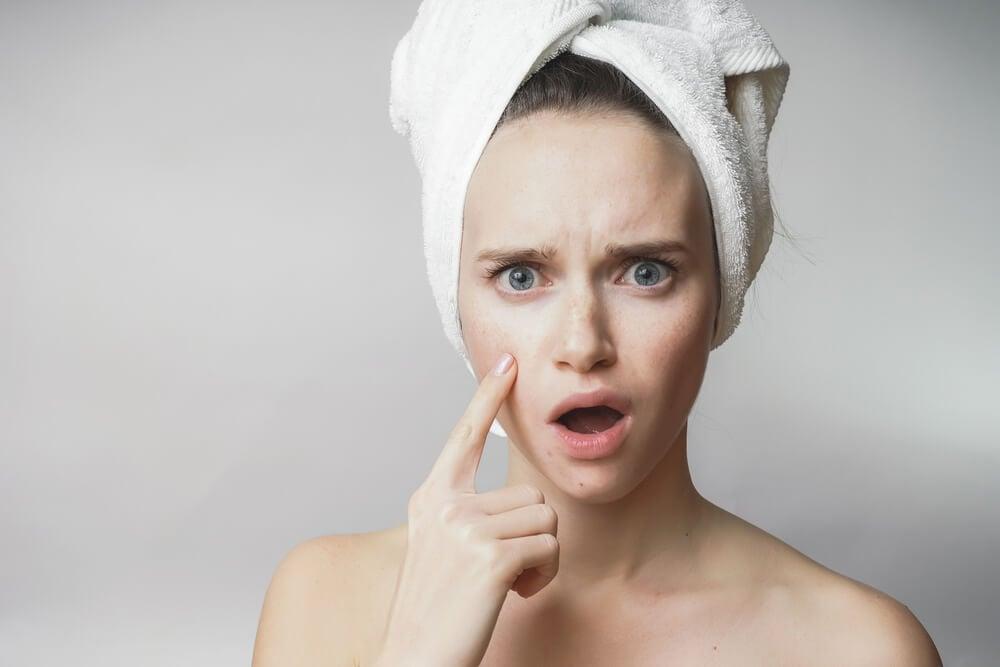 acné o piel grasa